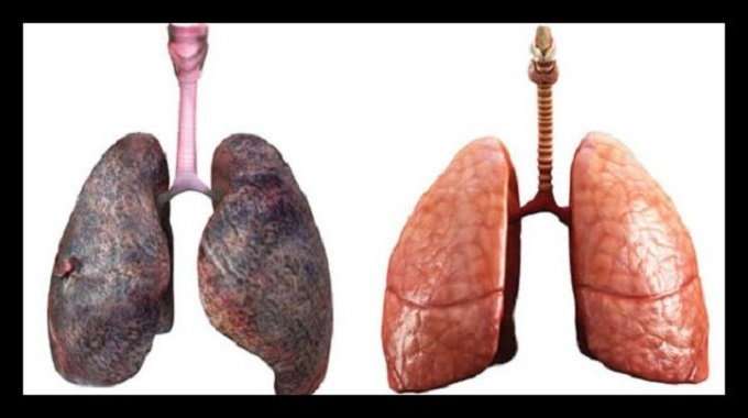 remedios naturales para los pulmones
